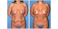 tummy3