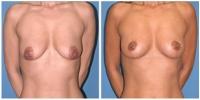 breastlift2