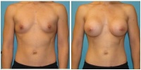 breast_aug12
