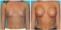 breast_aug13