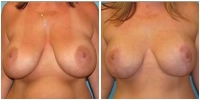 breast_aug15