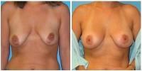 breast_aug8