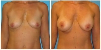breast_aug9