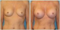 breast_aug11