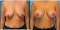 breast_aug3