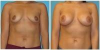 breast_aug5