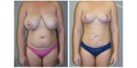 Liposuction 1
