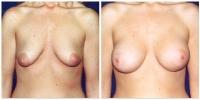 Breast Lift w/Augmentation