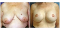 breastreconstruction1