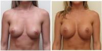 breast_aug4