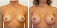 breast_aug8