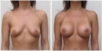 breast_aug9