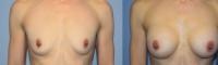 breastaug-2