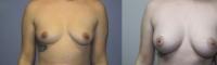 breastaug-6-1