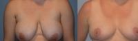 breastlift-6