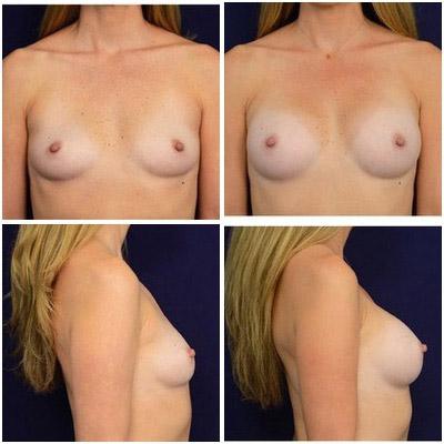 breastaug-1a