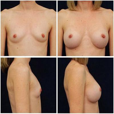 breastaug-3a