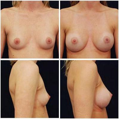 breastaug-4a