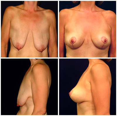 Carolina Breast Surgery New Bern - Breast Lift North Carolina