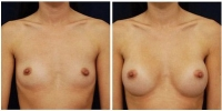 breastaug-5a