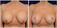 breastimplantrev-1