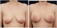 breastliftaug-1