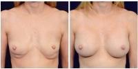 breastimplantrev-2