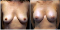 breast_aug4