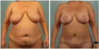 breast_lift2