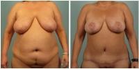 breast_lift2