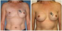 breast_recon1