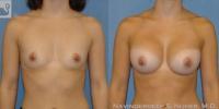 BreastAug-11