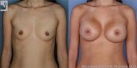 BreastAug-14