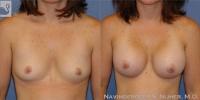 BreastAug-15