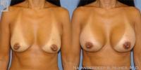 breastaug-19