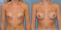 breastaug-20