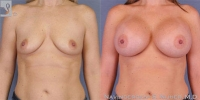 breastaug-22