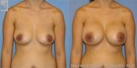 breastaug-23