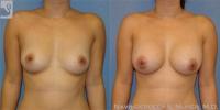 breastaug-25