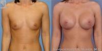 breastaug-31