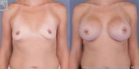 breastaug-37