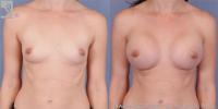 breastaug-52110