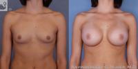 breastaug-52959