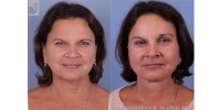 facelift-browlift-37952-r2