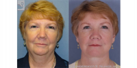 facelift_browlift-47407