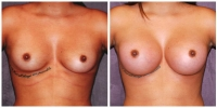 breast_aug14