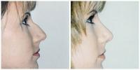 nose2