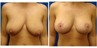 Breast Lift w/Augmentation 3