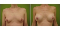Breast Augmentation 21