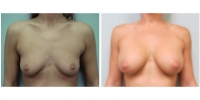 Breast Augmentation 6